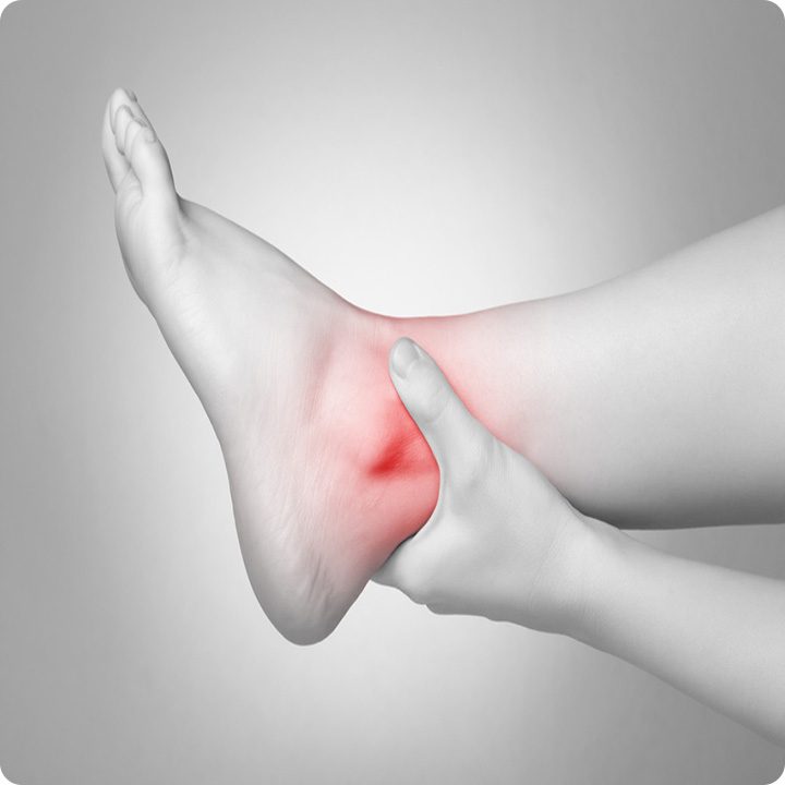 Ankle injuries (Inversion, Eversion)