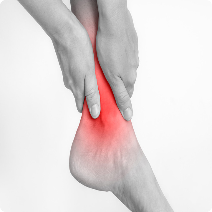 Overuse injury achilles tendinopathy