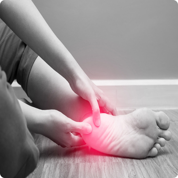 Plantar Fasciopathy or Plantar Fasciitis foot pain